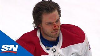 Brady Tkachuk Leaves Ben Chiarot's Face Bloodied After They Drop The Gloves